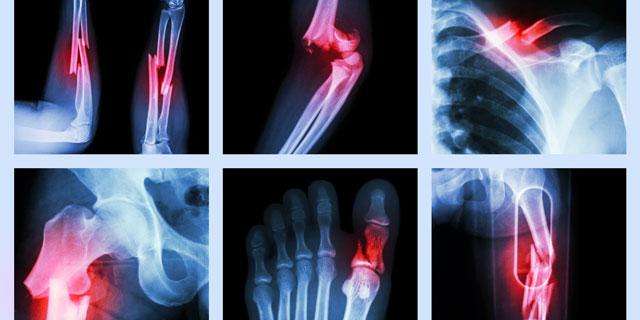 Knochenbrüche - In der Regel ist ein Knochenbruch eine akute ...