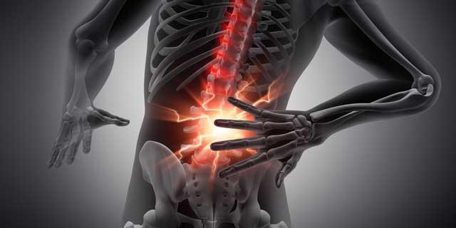 Wirbelsäulenbeschwerden - Beschwerden an der Wirbelsäule sind in der ...